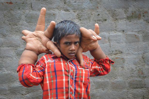 Индийскому мальчику уменьшили руку