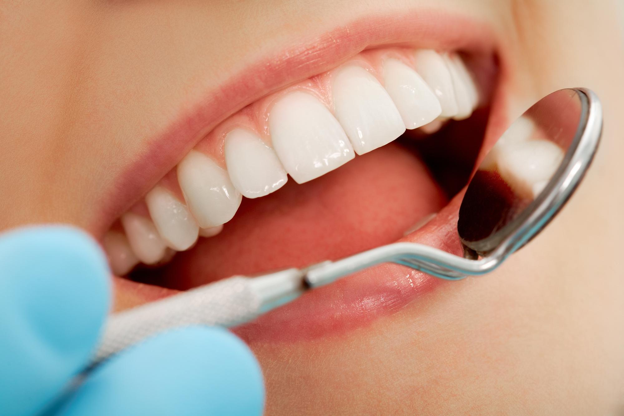 Как сэкономить на лечении зубов