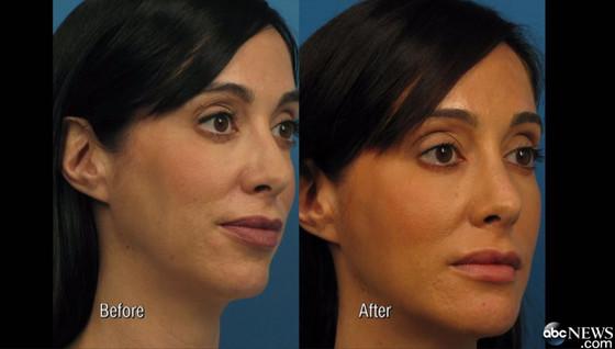 Американка до и после пластических операций