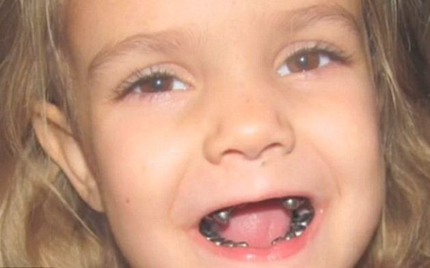 Вставной зуб ребенку