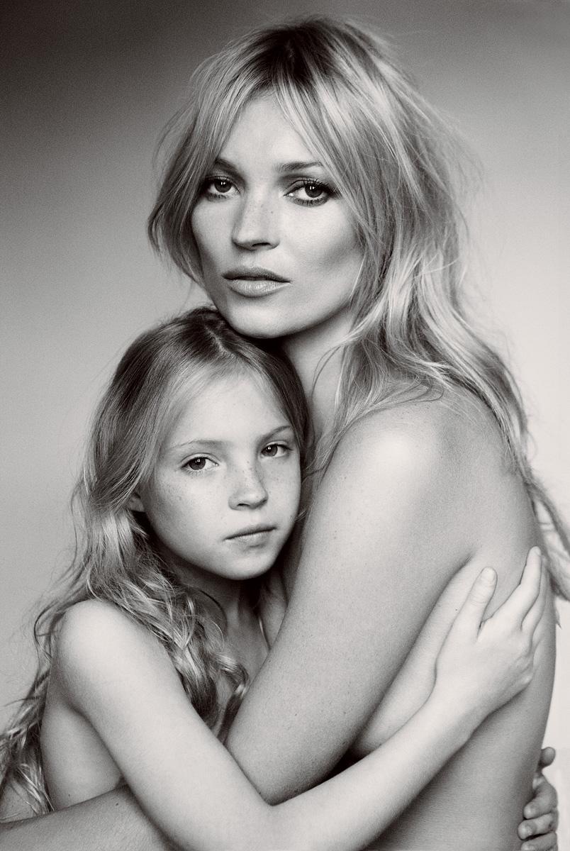 Дочь модели Кейт Мосс осталась без пальцев
