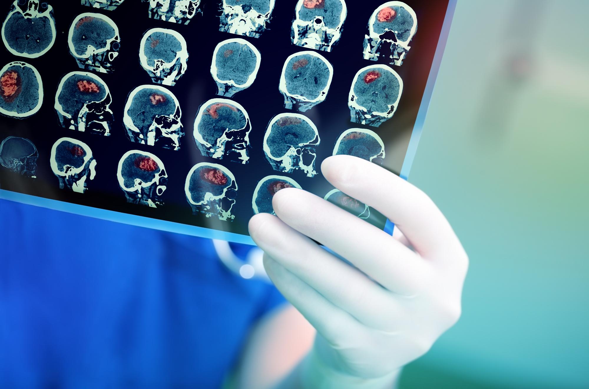 Почему инсульт молодеет: рассказывает невролог