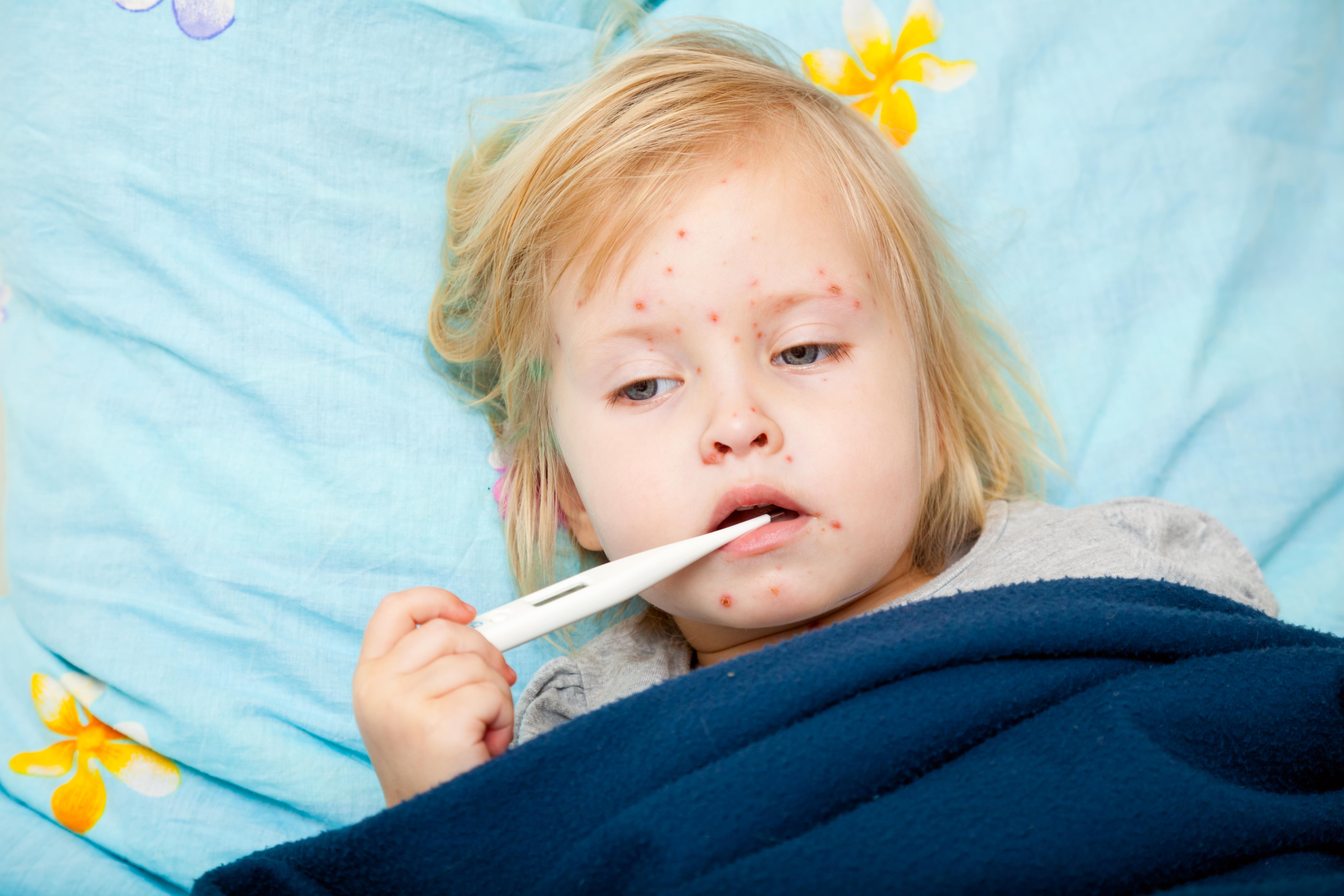 У ребенка, переболевшего корью, иммунитет ослабевает на два-три года