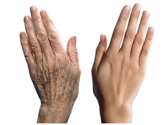 Сухость рук - верный путь к появлению морщин