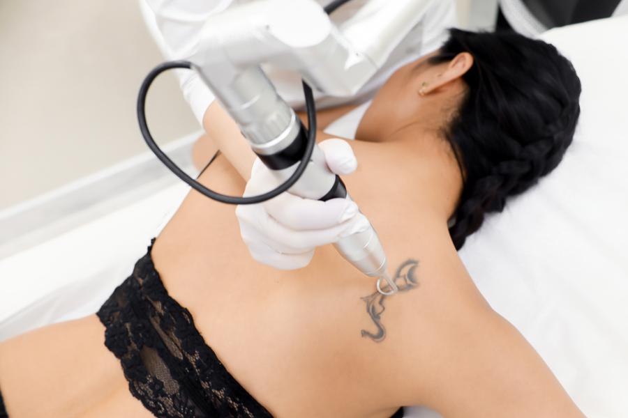Удаление татуировки: дерматолог ответила на главные вопросы
