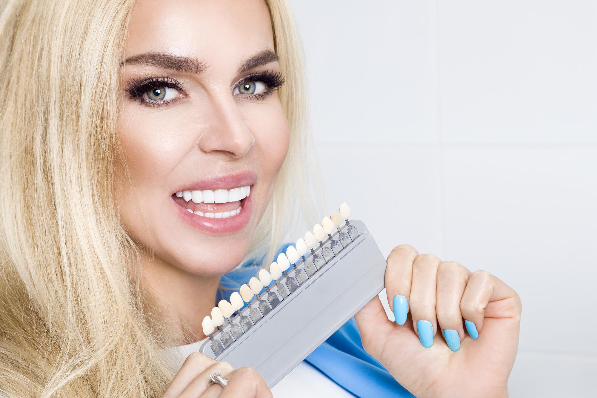 Зачем нужны виниры: рассказывает стоматолог