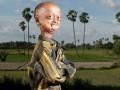 В теле старика: 14-летний мальчик из Индии выглядит на 110 лет