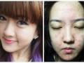 Берегись: 6 страшных историй про женские beauty-эксперименты