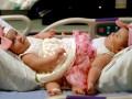 В США удачно разделили сиамских близнецов, сросшихся в области таза