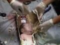 В Китае спасли новорожденного, которого мать смыла в унитаз