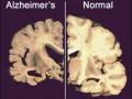 Для лечения болезни Альцгеймера в США начали испытания стимулятора мозга